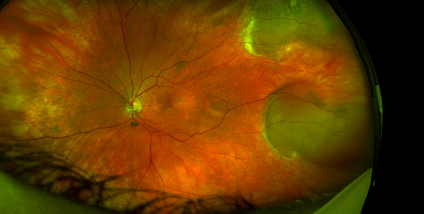 optomap retinal exam article